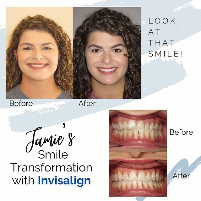 😁🦷🤩 Congratulations on your beautiful smile Jamie!!! Only 18 months…