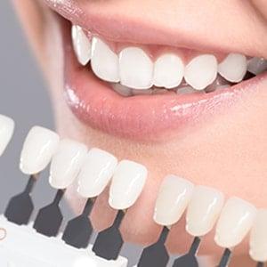 Stockbridge Dentist   Dental One Associates at Eagles Landing